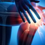 Knorpelschaden Knie: Schleichender Verlauf