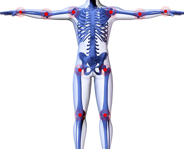 Arthrose: Gelenkverschleiß entgegenwirken!