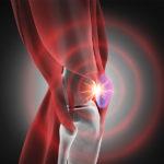 Die Warnzeichen einer Kniearthrose erkennen!