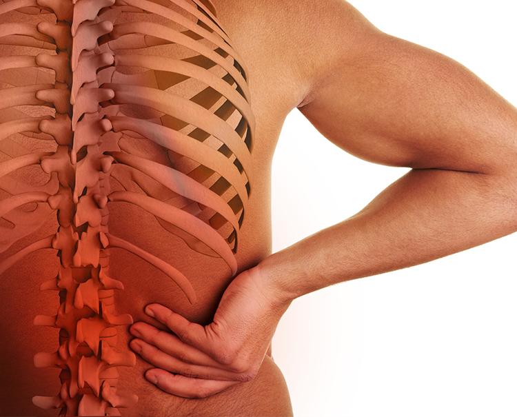 Was ist Arthrose? Verlust der Knorpelmasse